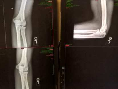 x-ray of fractured elbow three weeks later