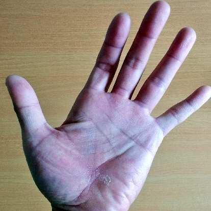 Felix Wong's hand, peeling skin, hot spots, 2015 Trans Am Bike Race