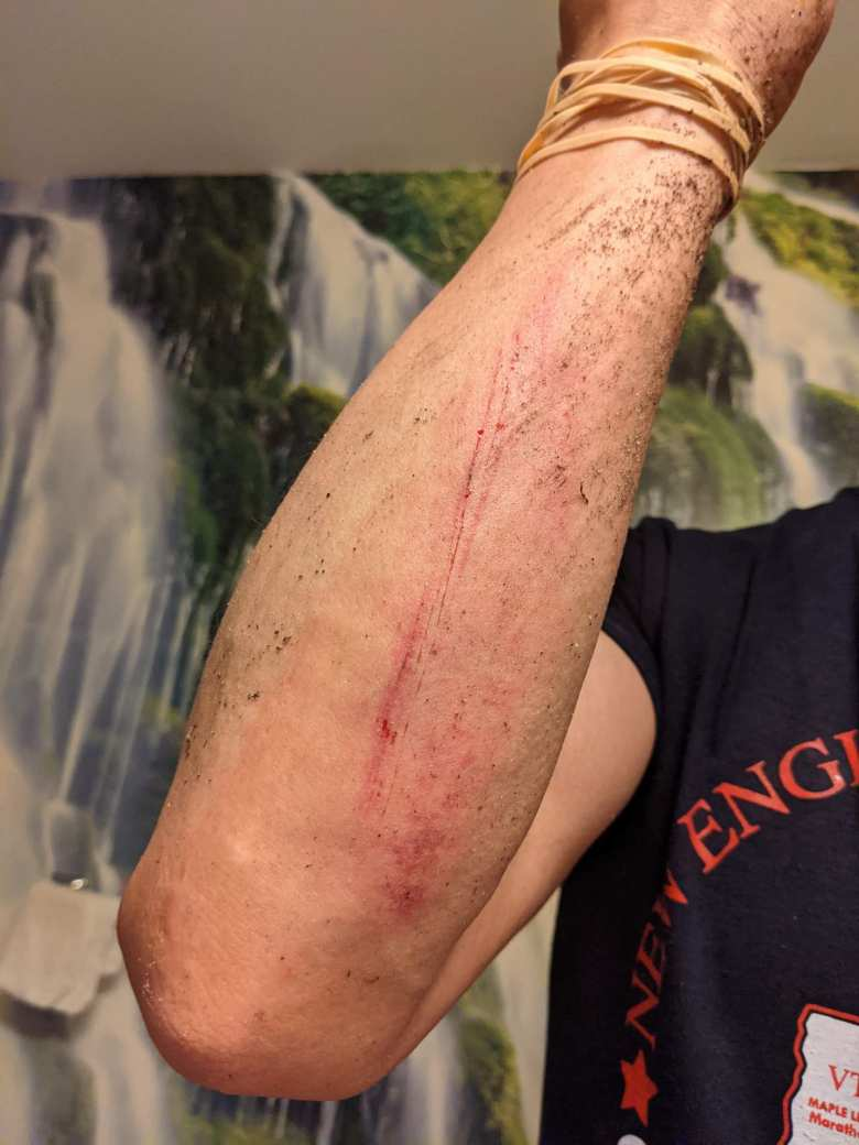 Felix Wong's bloodied arm after falling with a mere quarter-mile to go in the Mainly Marathons Independence Series 26.2-miler in Delaware.