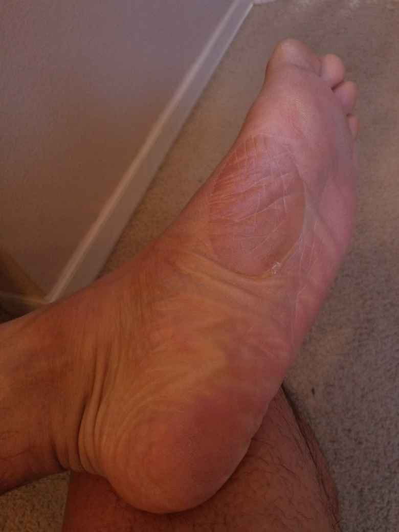 The huge blister on my left foot that developed during the 2020 Run Hard Columbia Marathon.