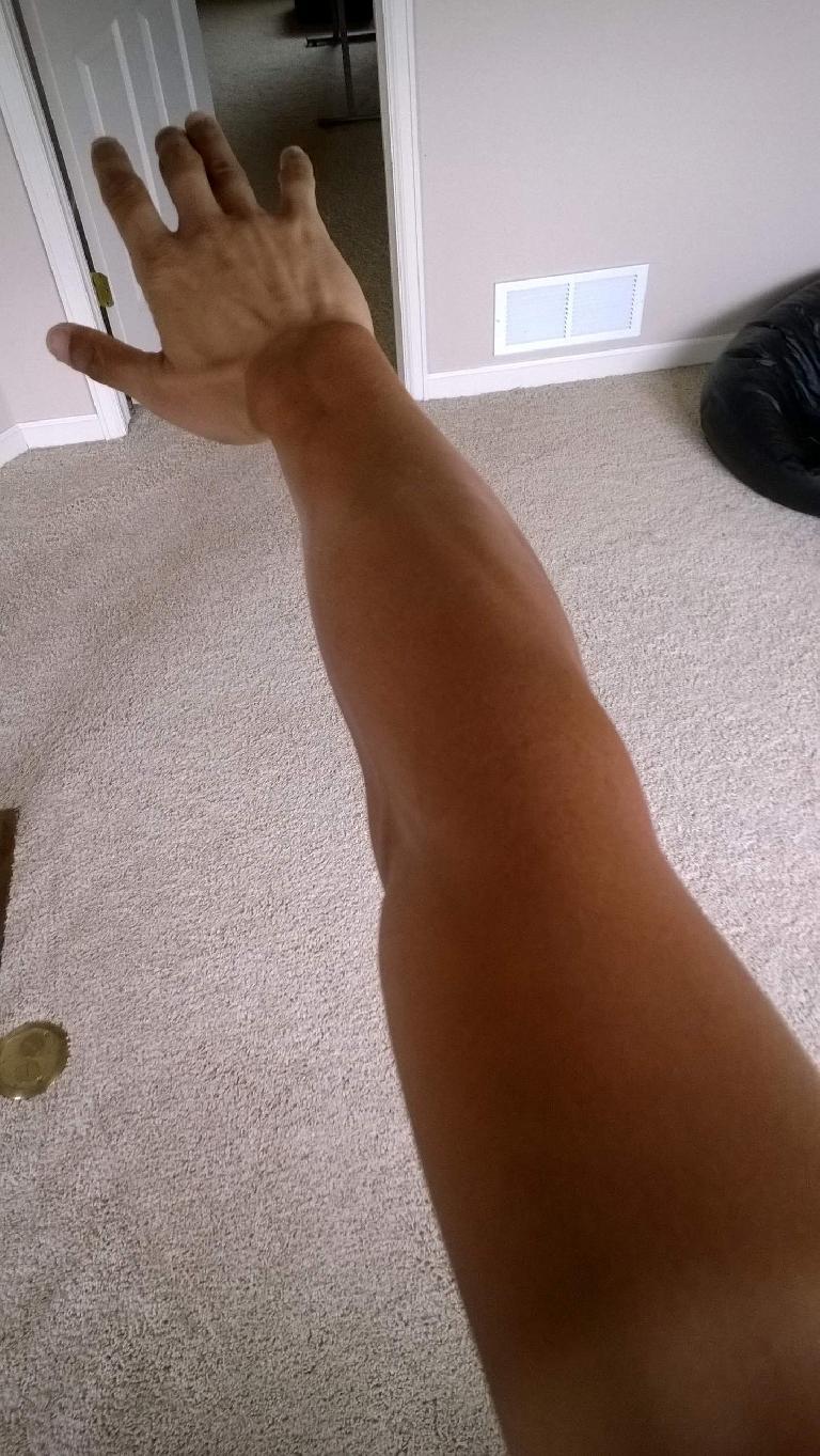 Felix Wong's arm, extreme tan lines, 2015 Trans Am Bike Race